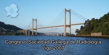 VII Congreso SGR 2007 Vigo